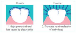 Fluoride+benefits1