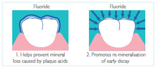 an argument against the use chemical fluoride to provide strength to our teeth Water fluoridation is the addition of the chemical water fluoridation is the addition of the chemical fluoride such as when it applied to the teeth in.