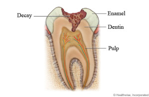 tooth decay im