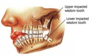 wisdom-teeth-removal1