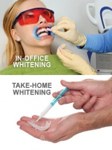 teeth-whitening-options-224x300