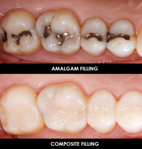 Silver-Versus-White-Fillings
