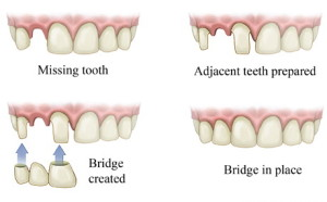 Dental-Bridge_14