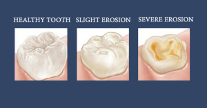 tooth_erosion