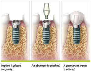 dental-implants-precise